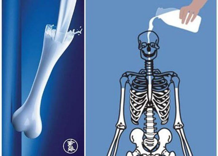 نشانه ها، علائم و علل پوکی استخوان نشانه ها، علائم و علل پوکی استخوان